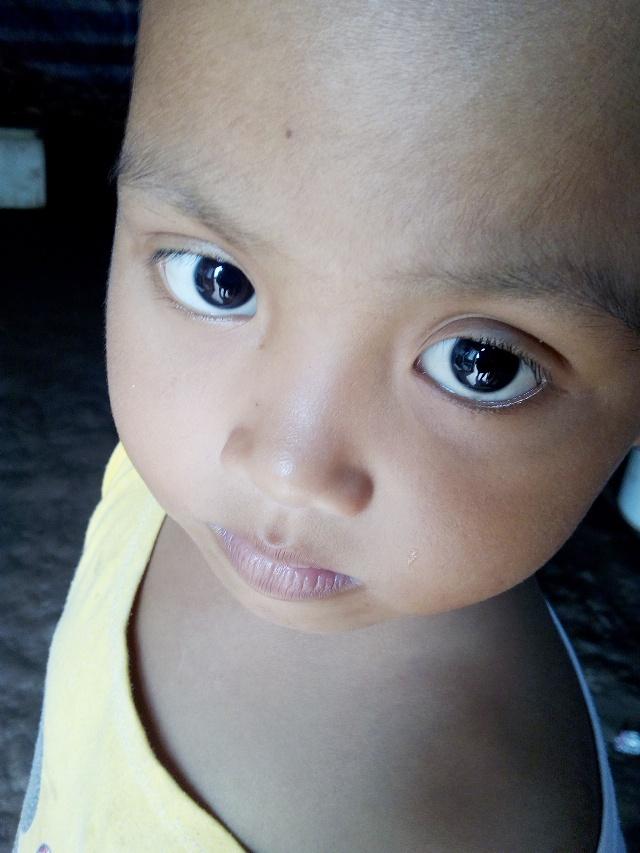 em bé 5 tuổi bị ung thư, xót xa bé 5 tuổi bị ung thư