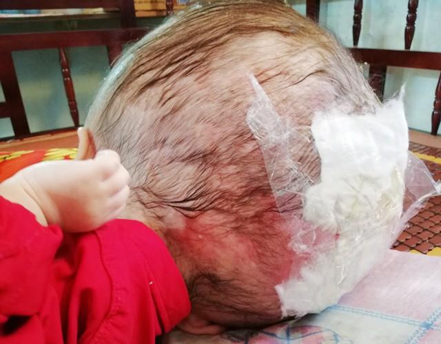 Xót thương bé trai có cái đầu to như quả bong bóng, lúc nào cũng như sắp nổ tung