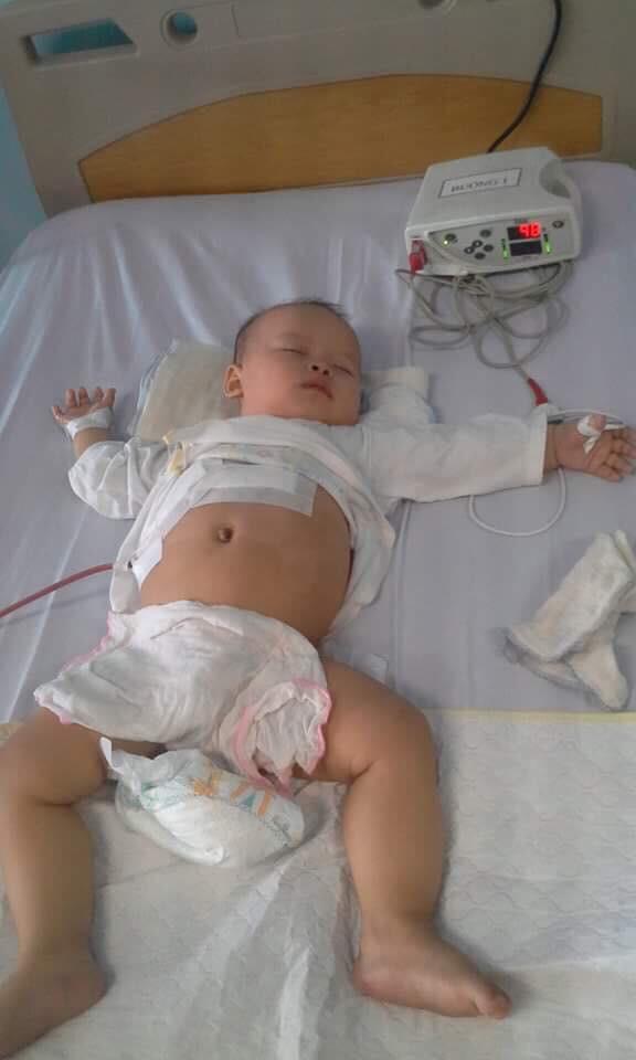 xót thương tiếng khoc của bé 10 tháng bị u nguyên bào gan, cuộc sống như ngọn đèn trước gió